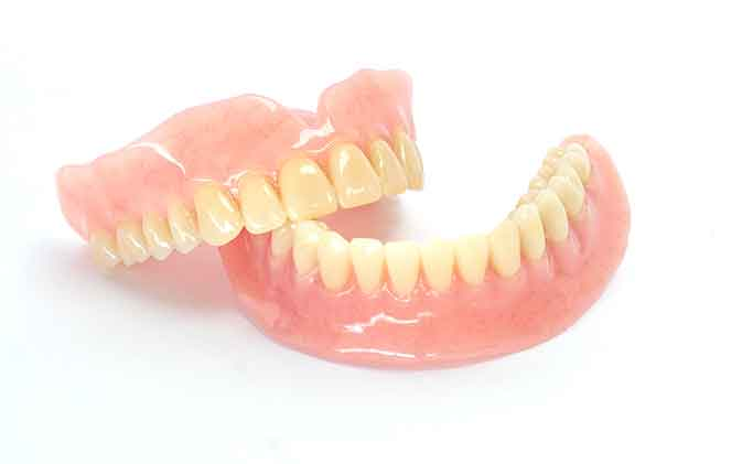 complex implant retained denture